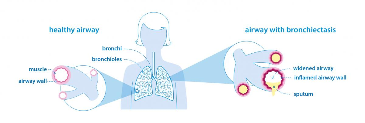 healthy versus bronchiectasis lung image