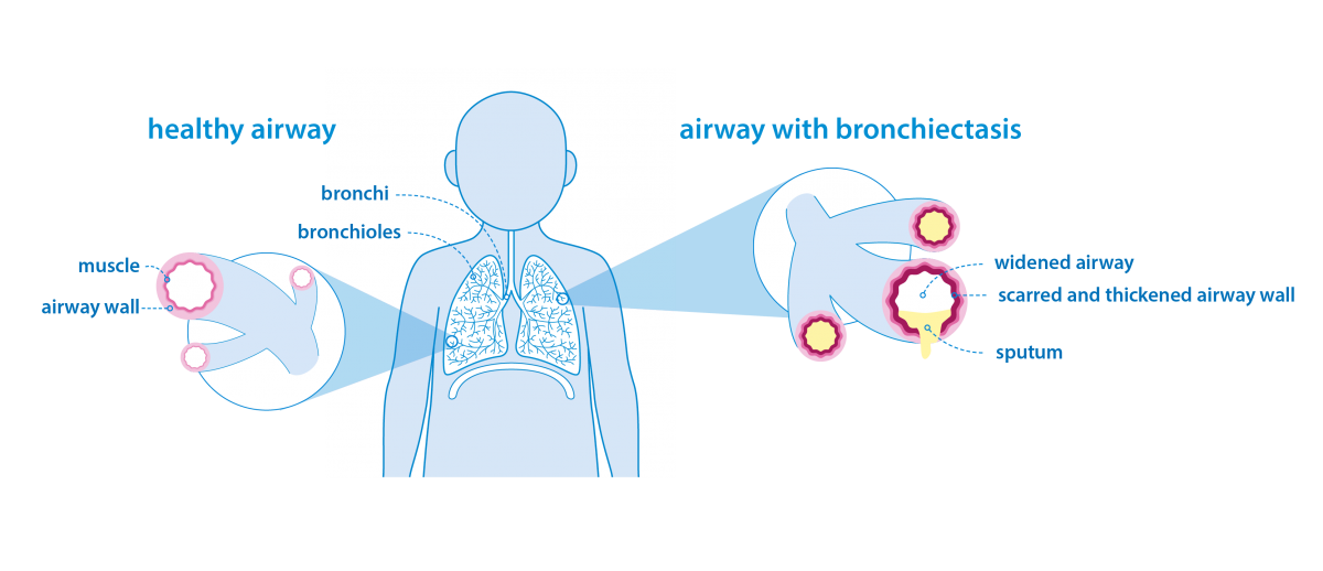 ronchiectasis in children: lungs diagram