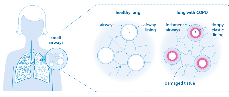 Diagram comparing healthy lung tissue with COPD-affected lung tissue