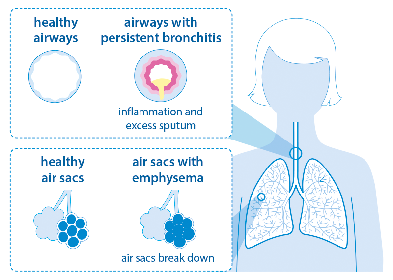 Diagram showing the appearance of the airways in bronchitis and emphysema