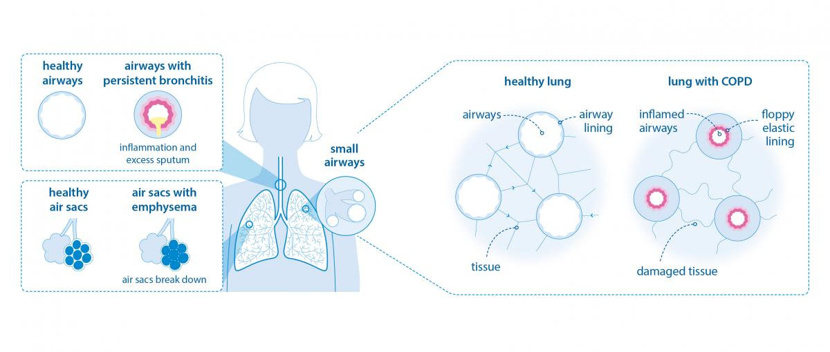 Diagram showing lungs with and without COPD by the British Lung Foundation
