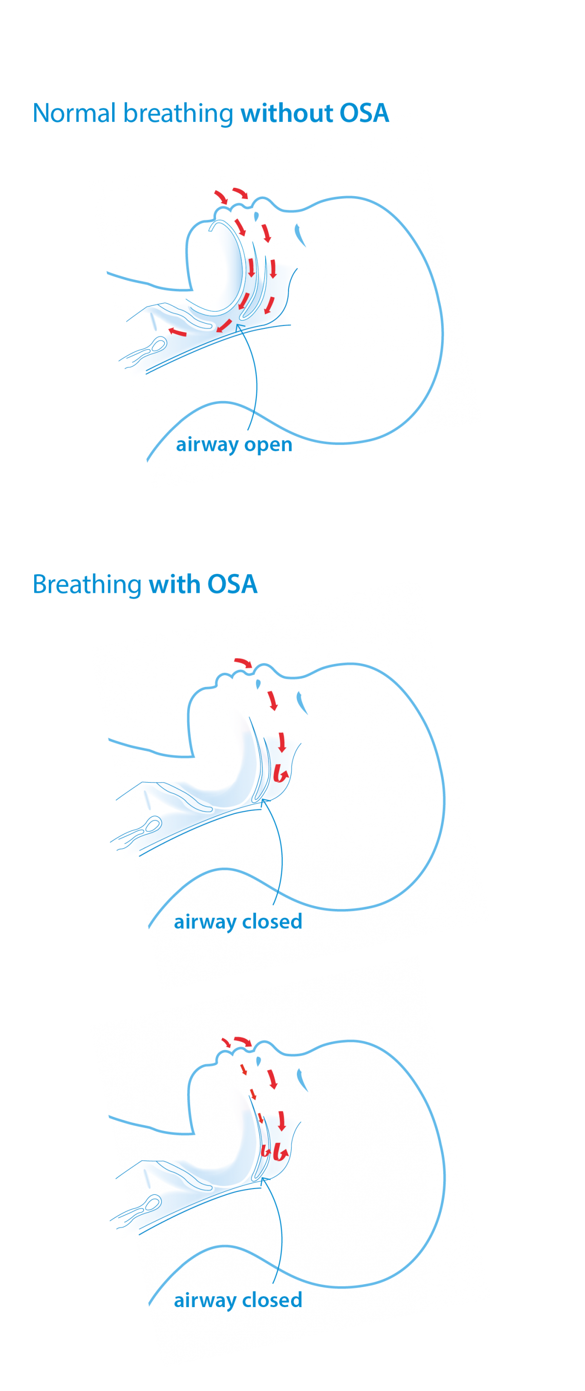 Breathing with and without OSA