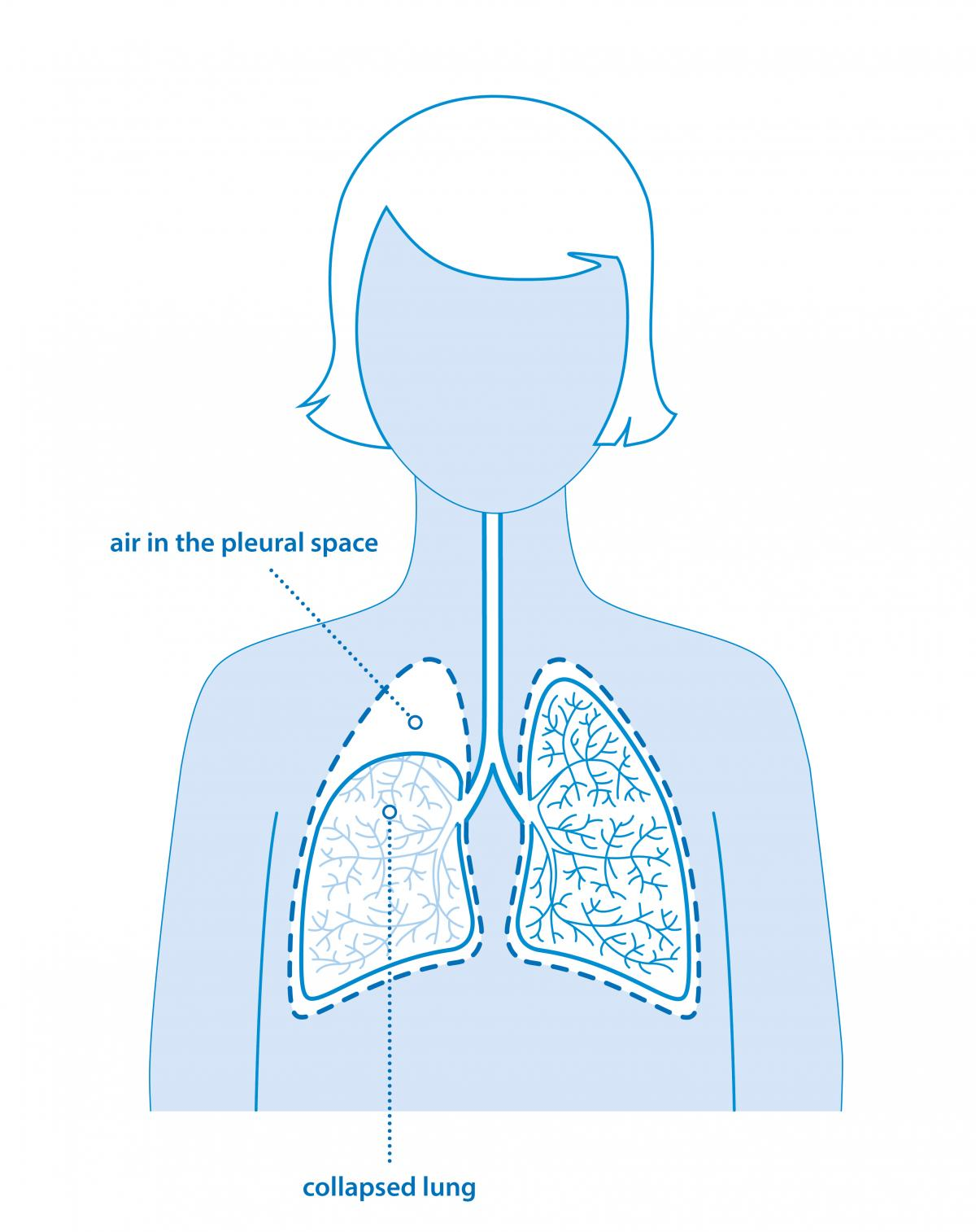 Pneumothorax diagram of lungs