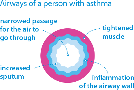 airways with asthma diagram