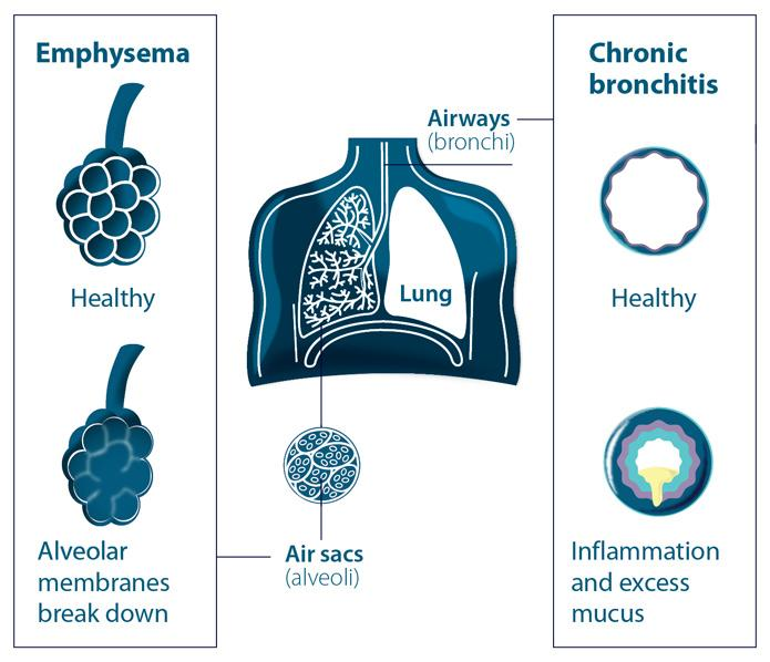 Copd emphysema bronchitis diagram of lungsg british lung foundation a diagram of the lungs showing the alveoli and airways in emphysema and chronic bronchitis ccuart Image collections
