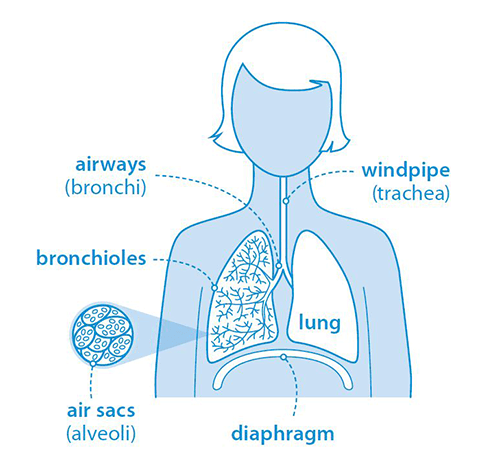 Diagram of the lungs, airways, bronchioles, and air sacs