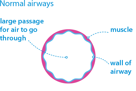 normal airways diagram