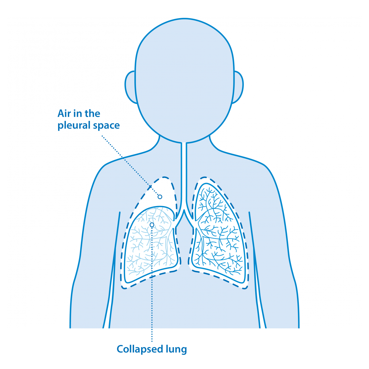 The pleural space