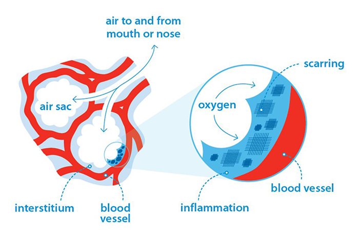 how does pulmonary fibrosis affect your breathing? british lungair sacs of the lungs in pulmonary fibrosis