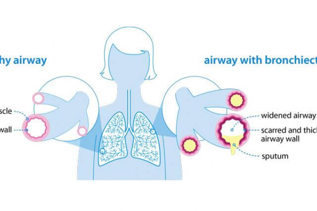 Bronchiectasis diagram