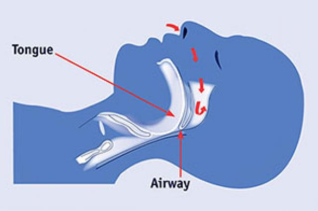 Diagram: in OSA, your airways narrow and air stops reaching the lungs