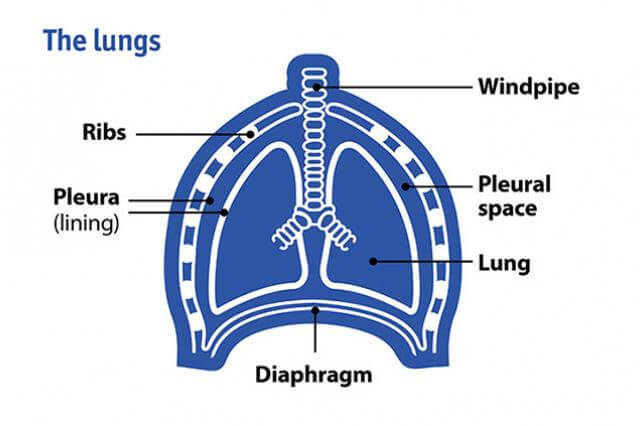 A diagram of the lungs showing the pleura (lining), windpipe and diaphragm