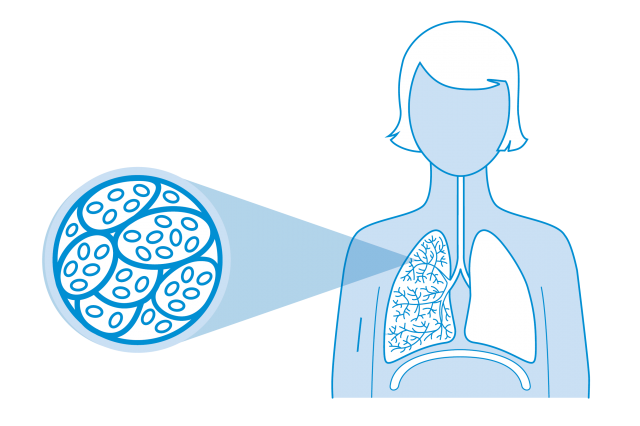 I've just been diagnosed with COPD | British Lung Foundation